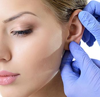 otoplastia o operación de orejas